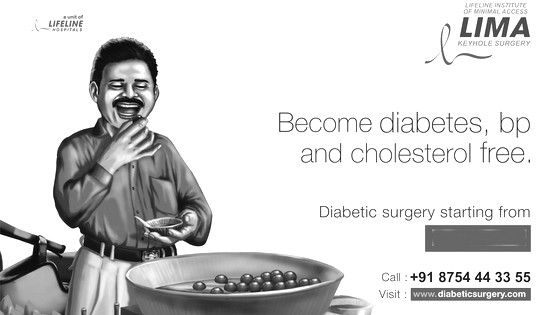 Diabetic Surgery (or Metabolic Surgery)
